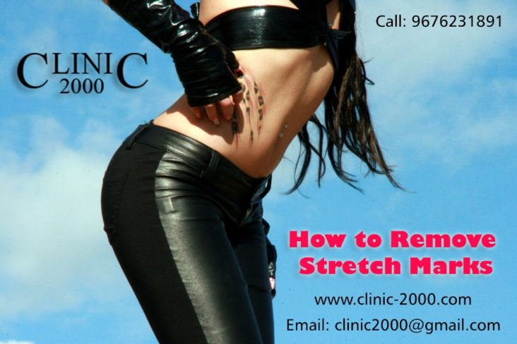 How to Remove Stretch Marks, How to Remove Stretch Marks
