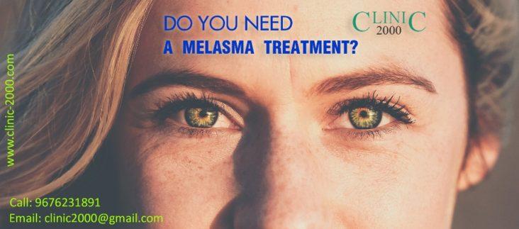 Melasma Treatment, Melasma Treatment