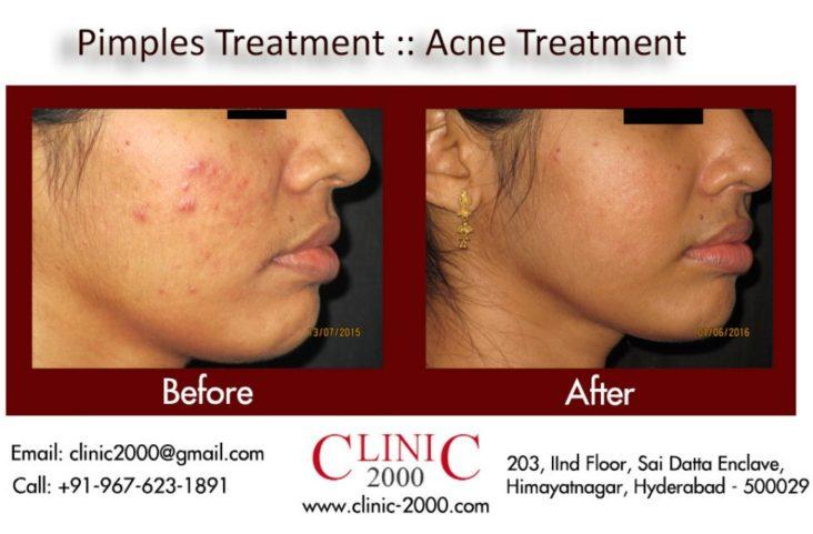 How to get rid of pimples, How to get rid of pimples