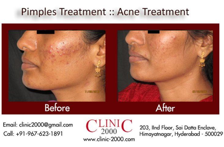 Pimples Treatment, Pimples Treatment