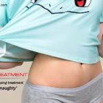 Stretch Marks Treatment in Hyderabad, Stretch Marks Treatment