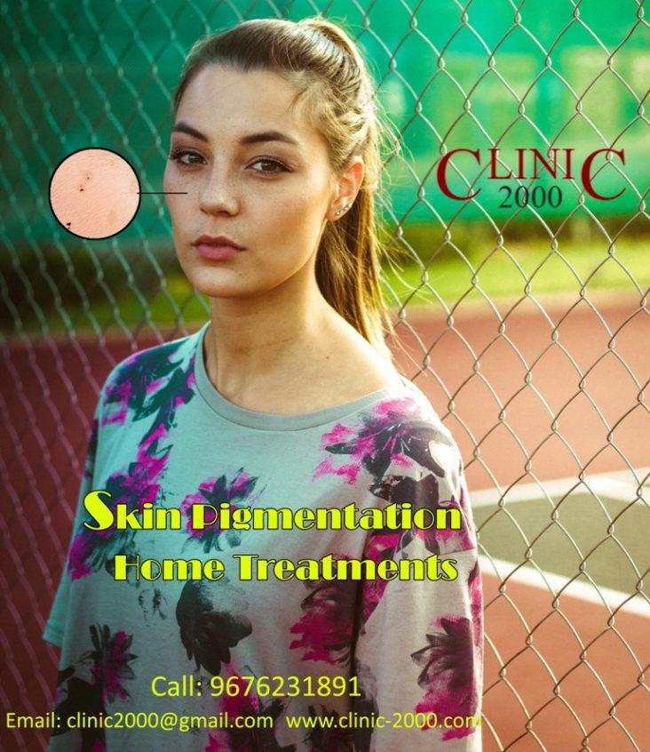 Skin Pigmentation Treatment in Hyderabad, Skin Pigmentation Treatment in Hyderabad
