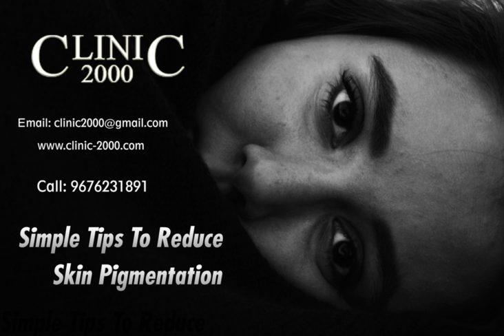 , Tips for Skin Pigmentation