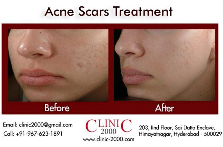 Acne Scar Treatment in Hyderabad, Acne Scar Treatment in Hyderabad
