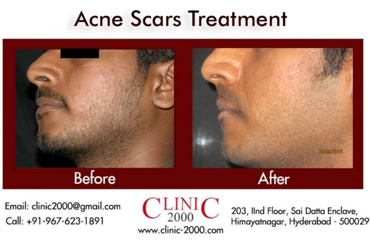 Best Treatment for Acne Scars, Best Treatment for Acne Scars