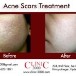 Reduce Acne at Clinic 2000