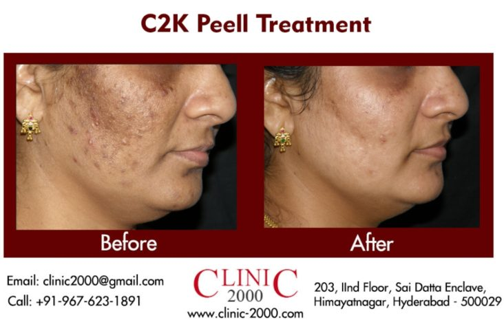 Chemical Peel Treatment in Hyderabad, Chemical Peel Treatment in Hyderabad