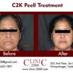 Get Younger looking skin with Skin Peel Treatment, Get Younger looking skin with Skin Peel Treatment