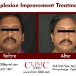 Pigmentation Treatment at clinic 2000