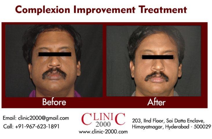 Pigmentation Treatment at clinic 2000, Pigmentation Treatment at clinic 2000