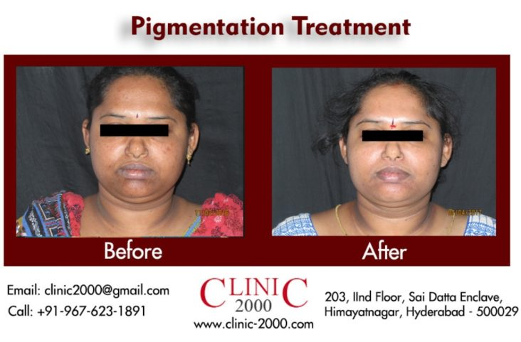 Best pigmentation Treatment in Hyderabad, Best pigmentation Treatment in Hyderabad