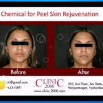 Chemical for Peel Skin Rejuvenation - Laser Skin Resurfacing