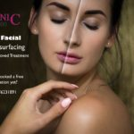 Laser Facial Skin Resurfacing