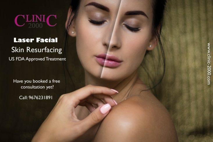 Laser Facial Skin Resurfacing