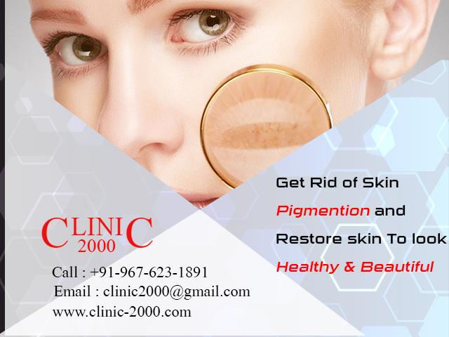Remove skin pigmentation at Clinic2000, Remove  skin pigmentation at Clinic2000