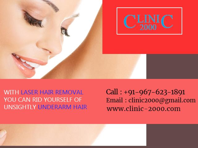 Laser HairRemoval Treatment