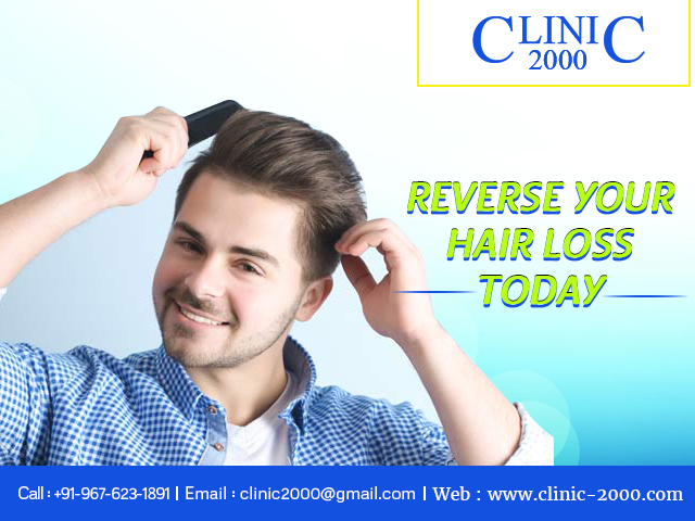 Reverse your Hairfall today at Clinic2000, Reverse your Hairfall today at Clinic2000