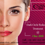 Get Permenant Solution for DarkCircles, Get Permenant Solution for DarkCircles