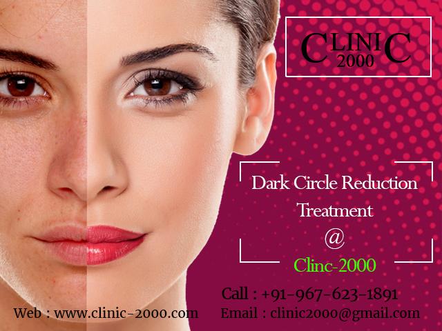 Remove Darkcircles at Clinic2000, Remove Darkcircles at Clinic2000
