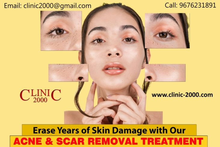 Remove Acne Scars with Professional Treatments in Hyderabad