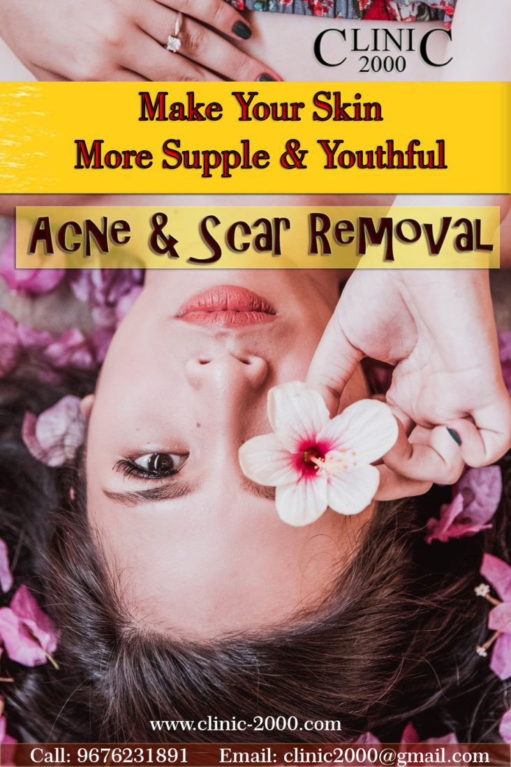 Best Acne Scar Removal Treatment in Hyderabad