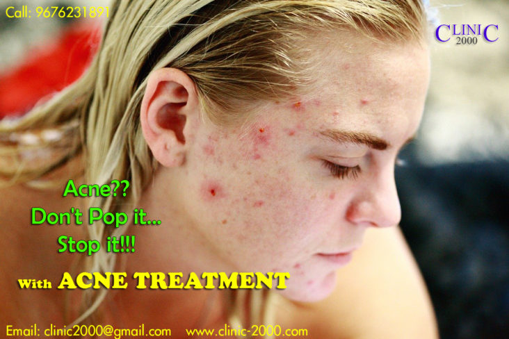Best Acne Treatment Clinic in Hyderabad