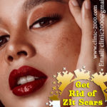 Best Acne Scar Treatments, Frustated with Acne Scars Visit Clinic2000 For a Long Lasting Solution Remove Acne scars