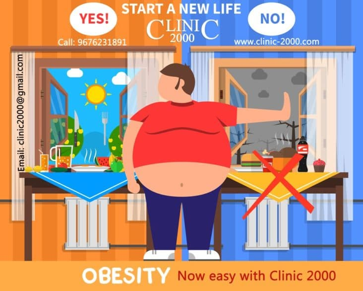 Obesity Treatment in Hyderabad, Obesity Treatment at Clinic 2000
