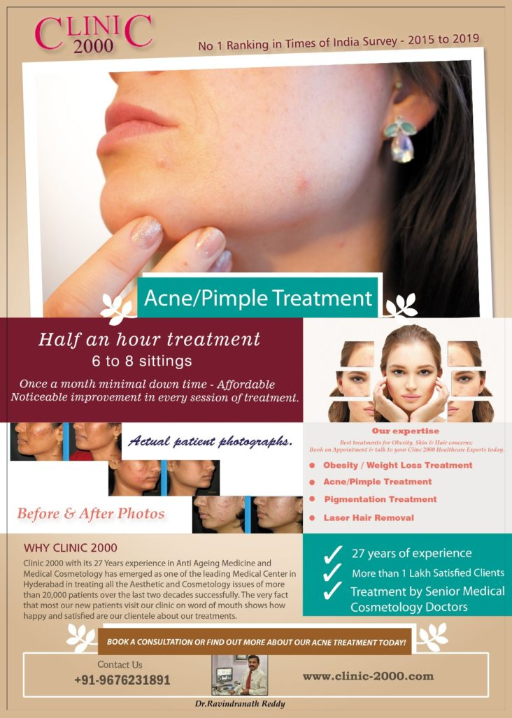 AcnePimples Scar Treatment