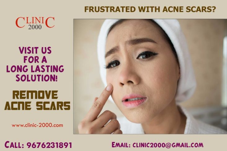 Frustated with Acne Scars Visit Clinic2000 For a Long Lasting Solution Remove Acne scars